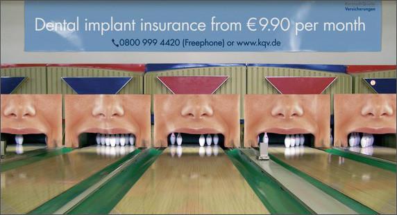 Πατήστε στην εικόνα για να τη δείτε σε μεγένθυνση  Όνομα:  dental_implant.jpg Εμφανίσεις:  224 Μέγεθος:  113,8 KB