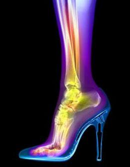 Ψηλά τακούνια, πόσο βλάπτουν; • e-steki